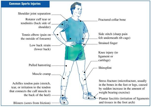 Sprainsstrainsinjuries